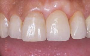 義歯治療後